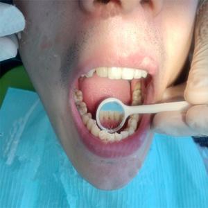 二十五年没有洗过牙,平时还有抽烟的习惯,所以牙齿都有烟渍了。上周就被朋友拉着一起去华美洗了个牙。去的时候正好是中午时间,...