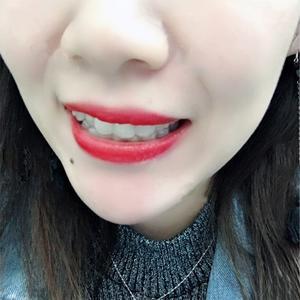 戴了一年后,牙齿看起来越来越整齐,感觉还不错,为自个的坚持点个赞,同时感谢华美。