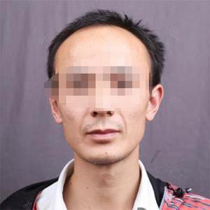 上个月这个时候去的上海华美医院做种植发际线和额角,已经一个月了。头发开始了自然地生长,长势感觉还非常的不错。现在差不多进...