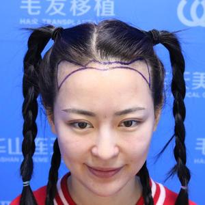 调整发际线绝对有小脸的功效,现在所有种植的头发都是自己的啦,洗头当然也会掉个几根但是也没多大关系,医生告诉我头发有自己的...