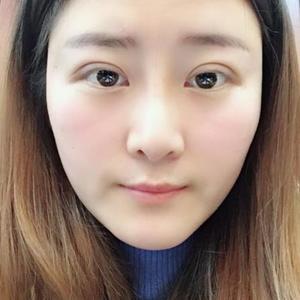 佳佳的美丽日记【3.5】眼部修复