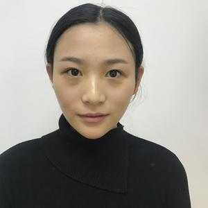 【上海華美李健院長自體脂肪填充】我本身臉型消瘦,就是感覺臉癟癟的,同事都說我看起來很沒精神,顯老氣。自從填完感覺豐滿立體...