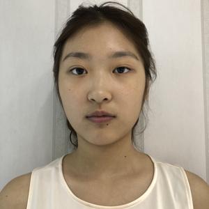鼻综合假体隆鼻
