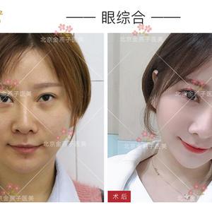有哪些情况需要做双眼皮?