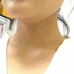 嗨体去颈纹+水光针