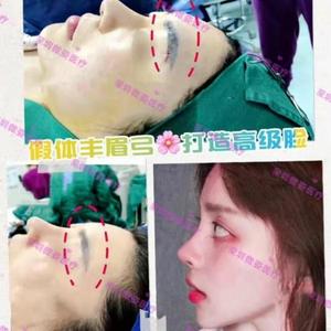 假体眉弓术后要注意什么?