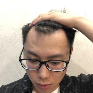 【南京美贝尔整形医院-发际线种植-126天】现在看种植的头发和自己的头发衔接的很自然,就像是天生一样了,上周回家和妈妈去...