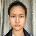 面部轮廓 下颌角切除术