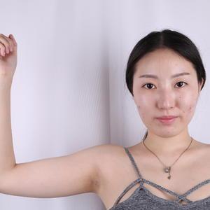 【上海華美何斌主任吸脂塑形】手臂吸脂部位,如預期般的恢復得光澤有彈性,今天是臨時想起來要拍一組照片來寫日記,所以沒有華麗...