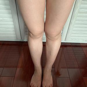 吸脂瘦腿后的84天,是不是觉得我的大腿越来越瘦了,自己基本上没有太多的赘肉了,莫名的自信了很多,不瘦下来永远不知道自己会...