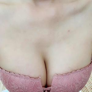 自体脂肪隆胸术
