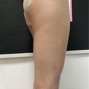 吸脂瘦大腿超棒