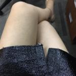 大腿吸脂恢复日记