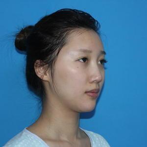 现在的鼻子基础很稳定,恢复的也很自然,有时候自己都忘记自己做了鼻子,在简单化下甚至素颜也都觉得美的不要不要的~