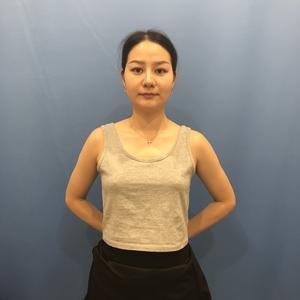 【南京美贝尔整形医院-假体隆胸-92天】现在的身材我真的是超级满意,做完假体胸即使躺下来胸部的弧度也是很自然,手感方面现...