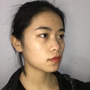 我很喜欢现在鼻型,鼻头不是很尖,我感觉很适合我的脸型,我不太喜欢尖的鼻头。隆鼻术后142天,鼻子已经超自然了,鼻梁摸起来...