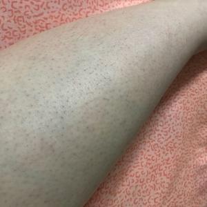 事实证明我的腿毛长得太快,但是好的是一长出来用手指随便一捏就掉了,毛孔的地方出现了一些小小的黑点点,比起一开始密密麻麻的...