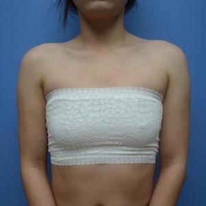 距离我做完手术都过去3个多月了,时间可过的太快了。胸并没有出现什么奇怪的症状,很好,摸起来是软软的,很挺,没有下垂迹象,...