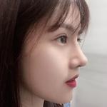 肋骨鼻综合+眼综合