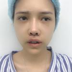 【唇部整形基地】人中缩短减龄年轻化