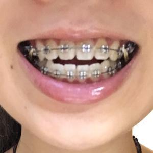 不知道是因为我现在太不注意总把托槽弄掉还是真的麻木了,反正我觉得已经一点都不疼了,牙齿排齐之后就开始密集了,稀松的牙齿变...