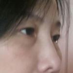 爱莱美医疗美容+祛眼袋