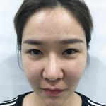鼻综合+眼综合