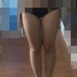 大腿吸脂术摆脱大象腿
