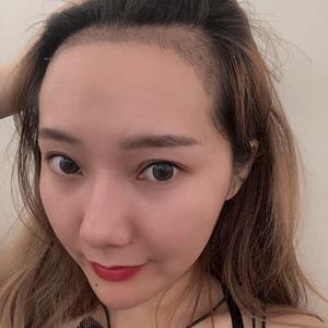 今天去医院检查的时候,医生说我植发区的毛囊已经稳固了,后脑勺的取发区与也已经恢复的差不多了,除了摸到的时候还是有些胀胀的...