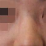 假体隆鼻让整个面部都精致立体了