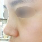 爱莱美医疗美容+自体肋软骨隆鼻