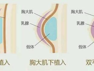 #艺星隆胸#【真人案例】假体隆胸到底假不假?