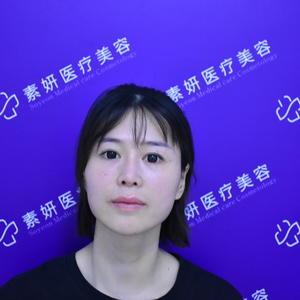 【长沙素妍医疗美容】填充以后最明显的一个改变就是面部饱满了,皮肤都变好了很多!都说女人过了25就会慢慢衰老,以前是只能眼...