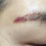 洗纹眉手术
