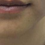 玻尿酸填充下巴效果立竿见影