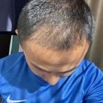 【郑州华山】植发
