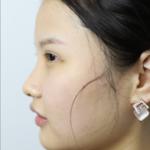 皮肤管理水光针