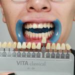 牙齿美白 钻光靓齿疗程