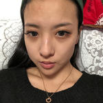 鼻修复、国产瘦脸针