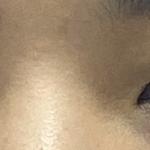 眼综合开内外眼角上俭提肌下俭下至去皮去脂