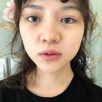唇部综合记录