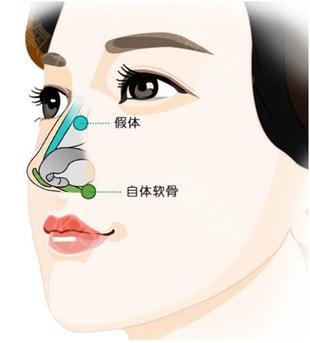 鼻型与脸型的关系