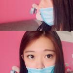 最有保障的自体隆鼻术西安悦华