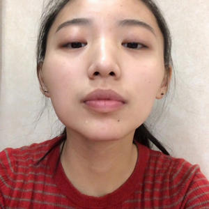 #汇星整形#吴勇#一针降颧骨到今天为止,手术时间已经过了整整4个月了。再做完降颧骨的这4个月里,除了我的面部轮廓改变了以外,其实我的心态也变了很多。以前的我很自卑,不自信,也不会化妆和搭配。可能是人变漂亮了以后,就慢慢变得会搭配会化妆了,所有人都觉得我变得越来越漂亮了,开心。