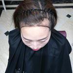 发际线毛发种植