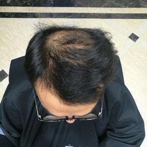 这么快已经半年了,现在头发整个很自然,发了这么多照片,给大家看下效果哦。感觉种植区的头发越来越密了,过了脱落期之后就感...