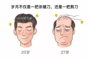 脱发是怎么回事??头发移植能帮上忙吗?