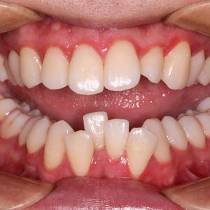 最近长痘痘了,吃辛辣的吃太横了…昨儿又去当代检查牙齿了,因为托槽掉了,还给我紧了紧钢丝,牙齿就又开始酸胀,但是习惯了我已...