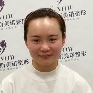 【斯美诺发际线手术后第15天】时间过得真快,现在头发干净了,种植的发际线看起来就特别的明显,不过想要新头发长到有刘海的样...