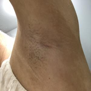 術后一個多月,腋下依舊干干凈凈,再也不用為它煩惱